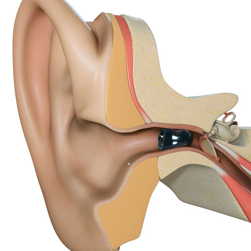Invisible-In-The-Canal (IIC) shown in the ear